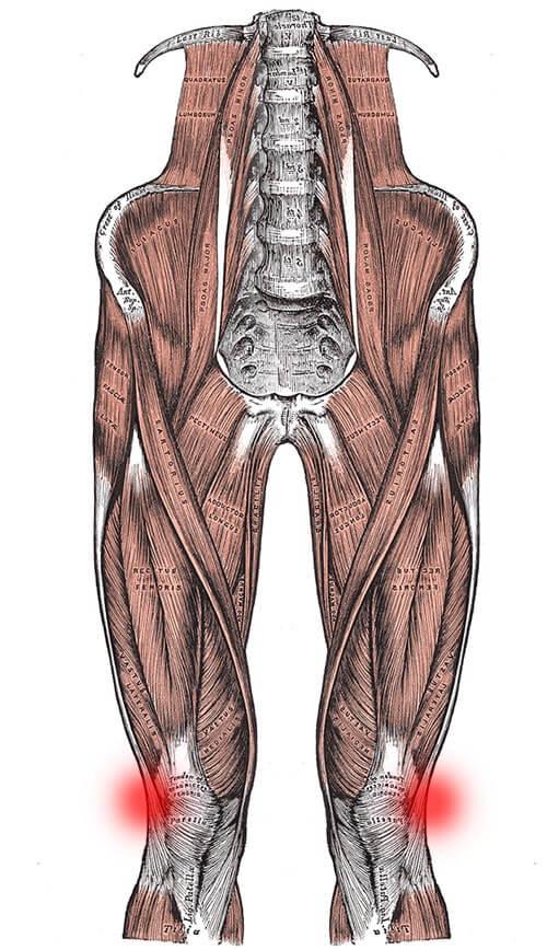 ITBS Symtpome: Schmerzen an der Außenseite des Knies