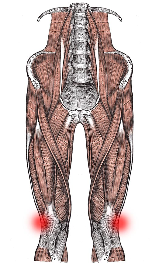 IT band symptoms: pain on the outer side of the knee